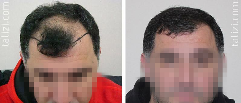 Фирмы масок для волос