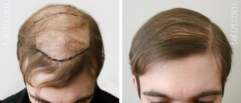 Как сделать лысину с волосами