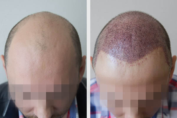Record breaking hair transplant surgery – 6 months have passed!
